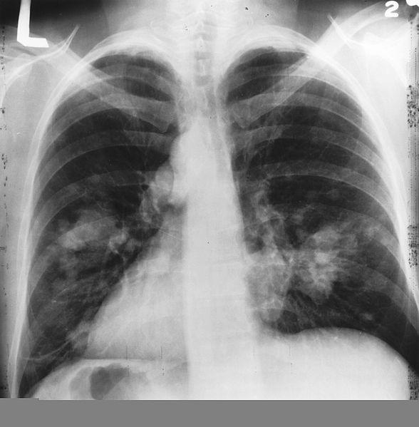 588px-X-ray(Chest)Cancer.jpg