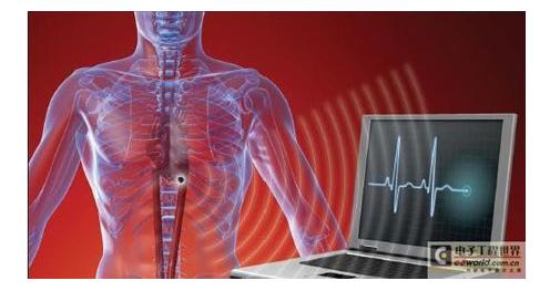 RF接收器植入医疗设备效果显著